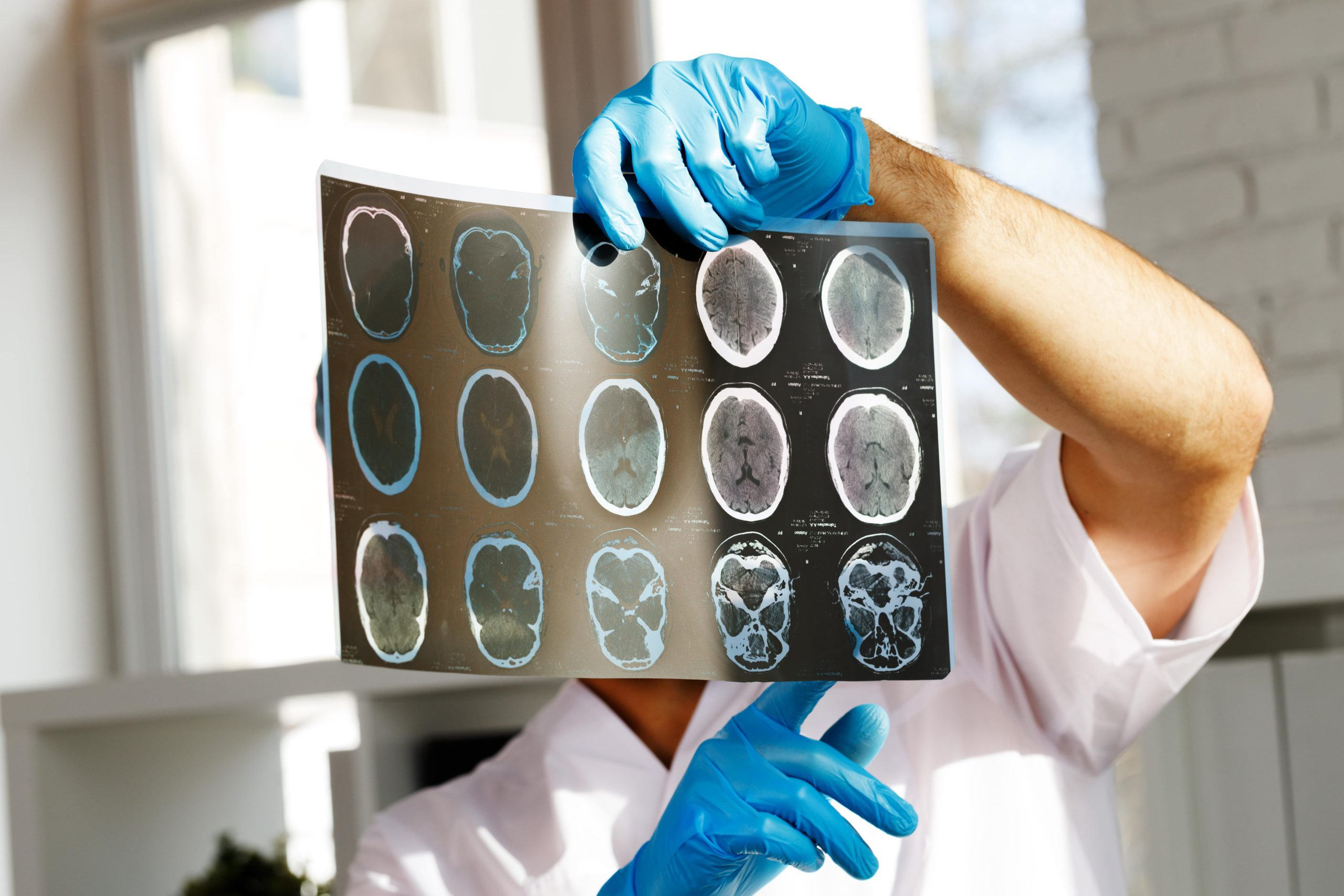 What do MRI Results Show